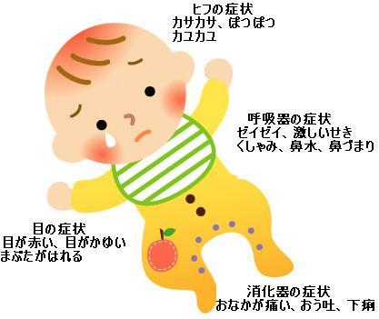 症状 卵 時間 アレルギー
